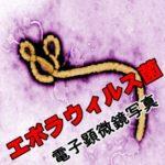 エボラ出血熱の感染はどこから感染する?最強ウィルスのランキング?