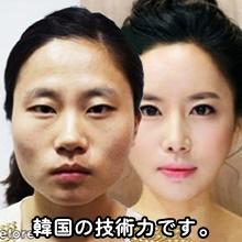 美容整形は「日本」「韓国」どっちがいい?料金比較とアフターケア事情